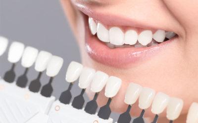 O clareamento dentário só pode ser realizado por um dentista?