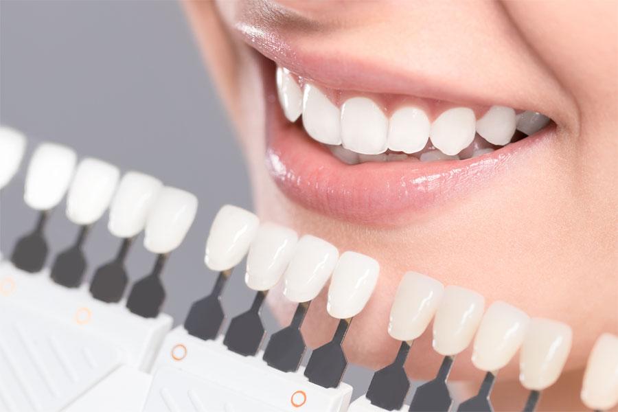 O Clareamento Dentario So Pode Ser Realizado Por Um Dentista