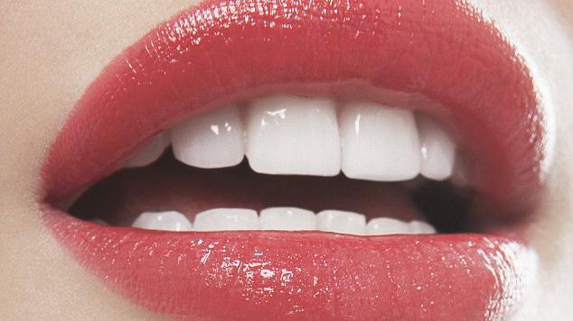 clareamento-dental-3