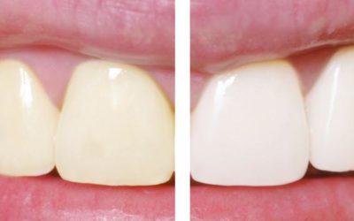 O clareamento dentário pode enfraquecer ou desidratar os dentes?