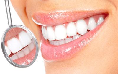 Os dentes clareados podem ficar manchados outra vez?