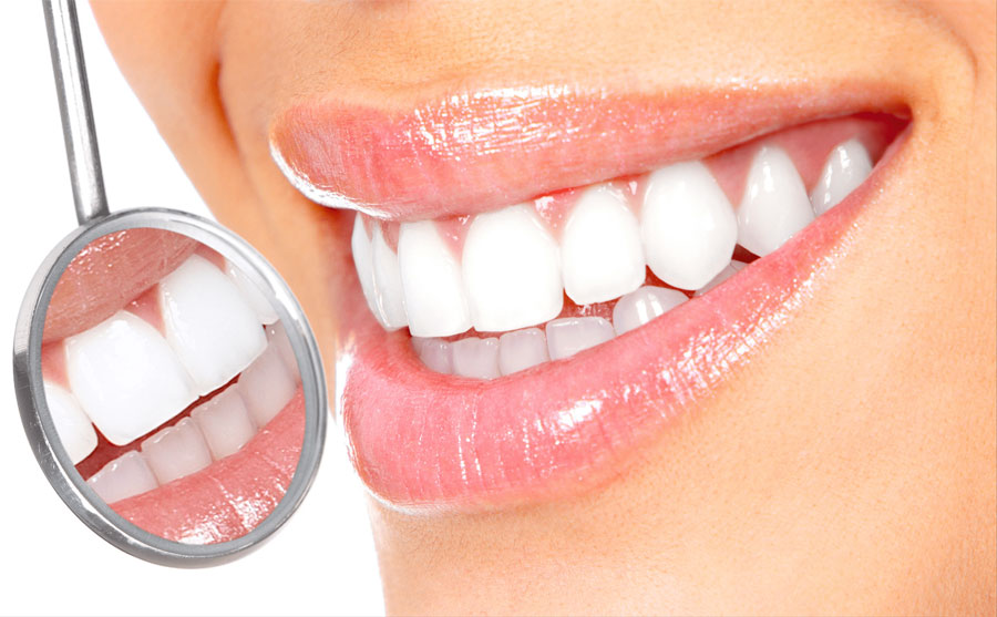 Os Dentes Clareados Podem Ficar Manchados Outra Vez Orthomaia