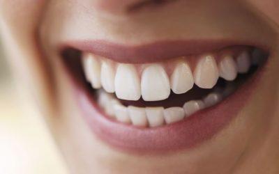 Que tipo de alimentos devem ser evitados por quem quer fazer clareamento dentário?