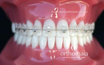 Efeito da escovação dentária no manchamento de braquetes estéticos cerâmicos
