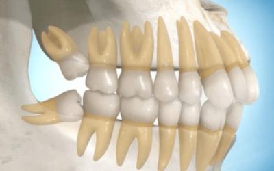 Quando remover os dentes cisos?